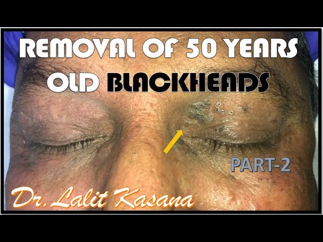 Video shows dermatologist removing 50-year-old blackheads