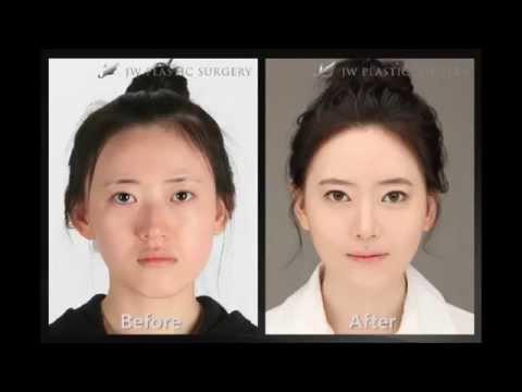 Пластические операции в Южной Корее фото до и после