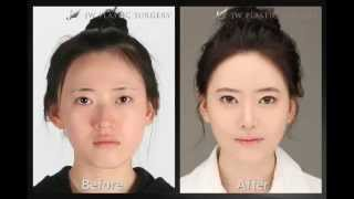 Results of Plastic Surgery.