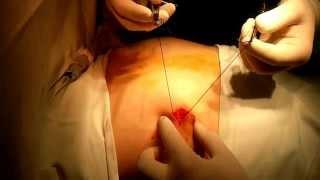 видео Аденома молочной железы: лечение, симптомы и операция. Удаление фиброаденомы груди