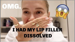 I HAD MY LIP FILLER COMPLETELY DISSOLVED | VLOG | MOLLYMAE