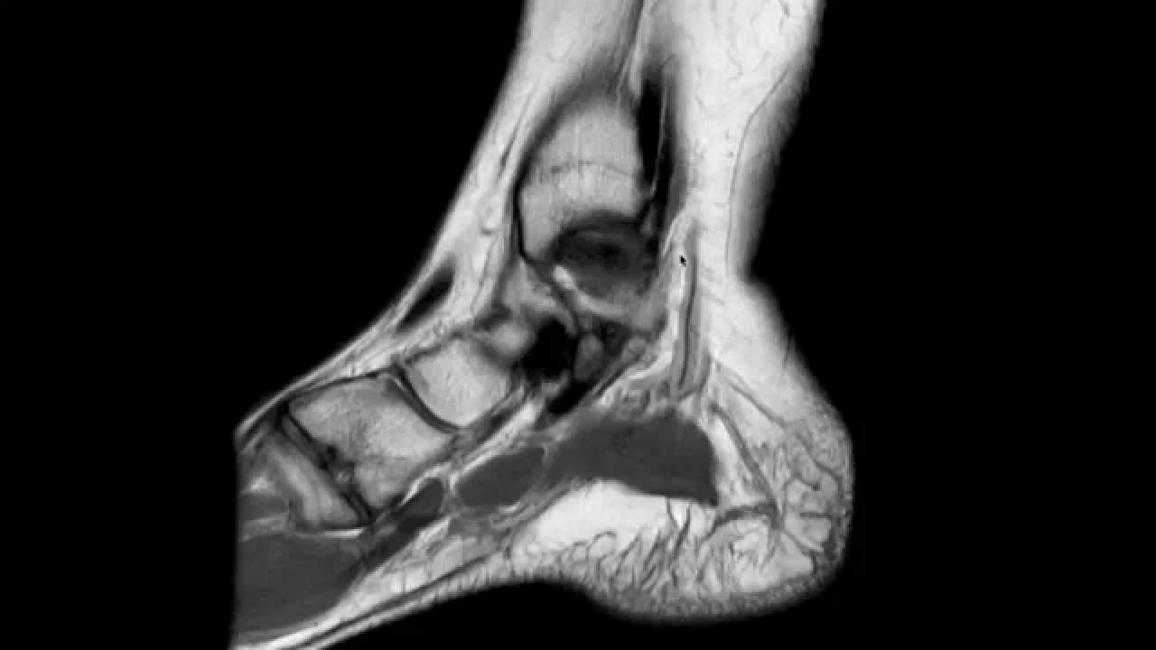 Ankle MRI anatomy - YouTube