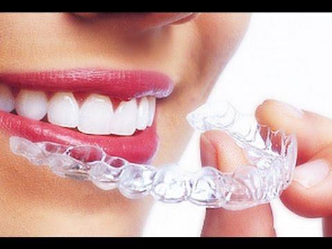 Новейшая ортодонтия. Invisalign или Брекеты?