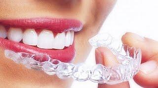 Новейшая ортодонтия. Invisalign или Брекеты?(Invisalign - это эстетическое ортодонтическое лечение для взрослых и подростков, полноценная альтернатива брек..., 2015-11-16T17:23:03.000Z)