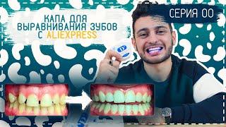 Бюджетная капа для выравнивания зубов | Распаковка с Aliexpress