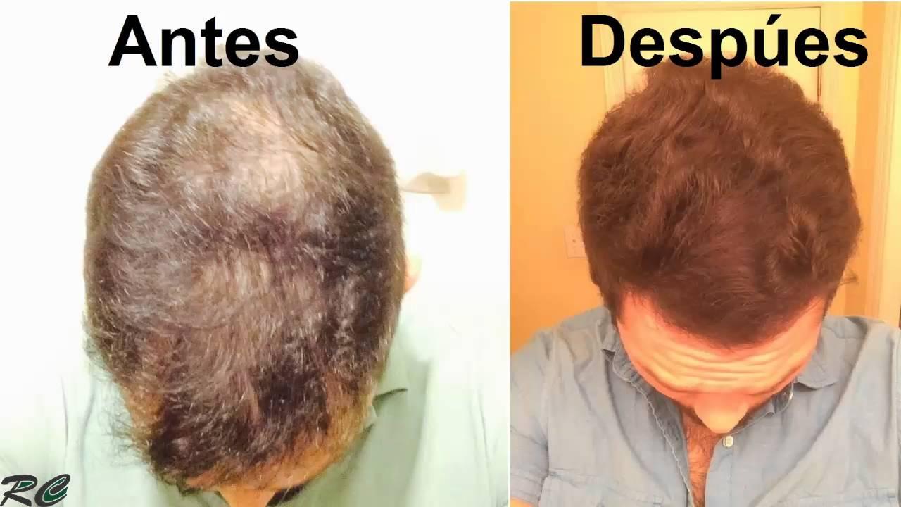 La agua oxigenada de la caída de los cabello