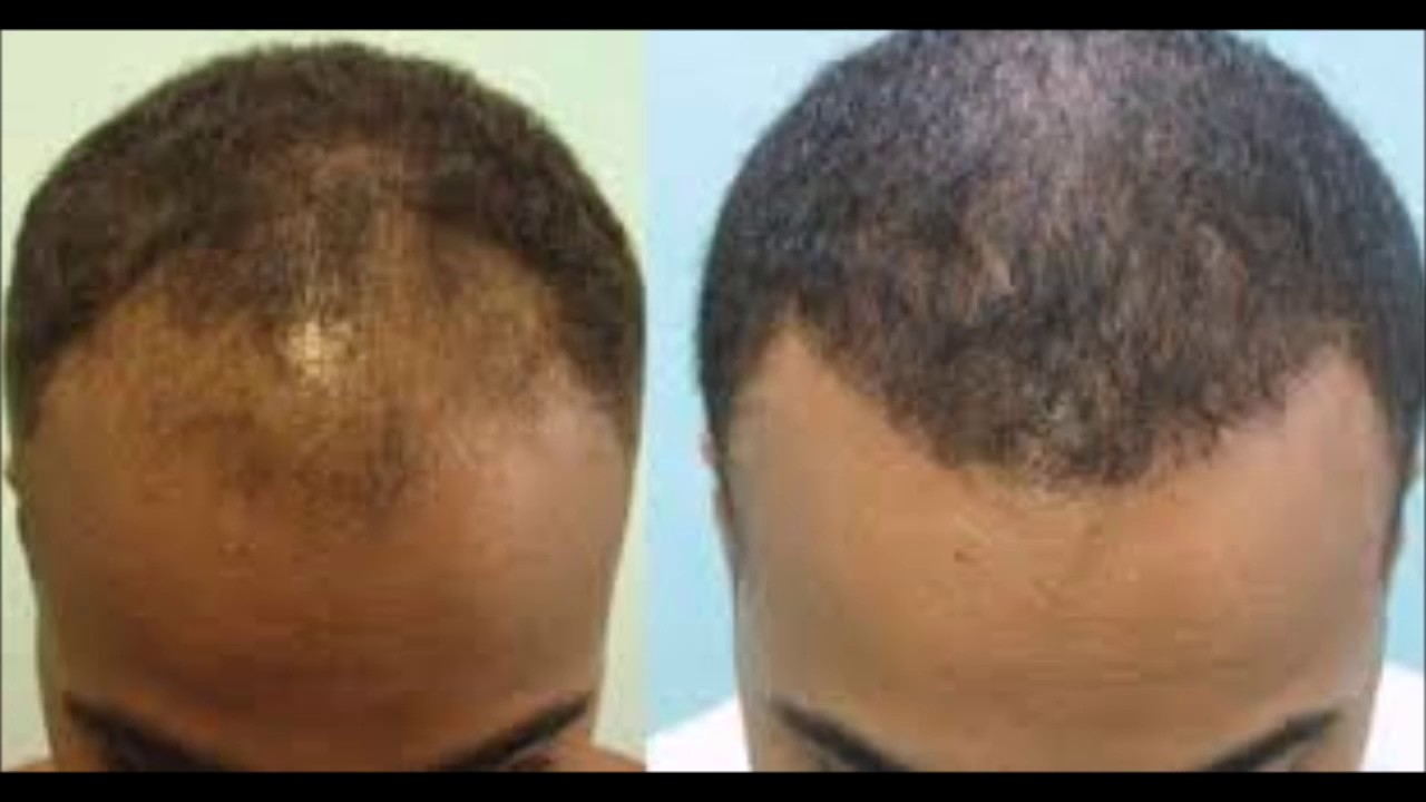 Do Isoplus Castor Oil Hair And Scalp Conditioner Grow Your