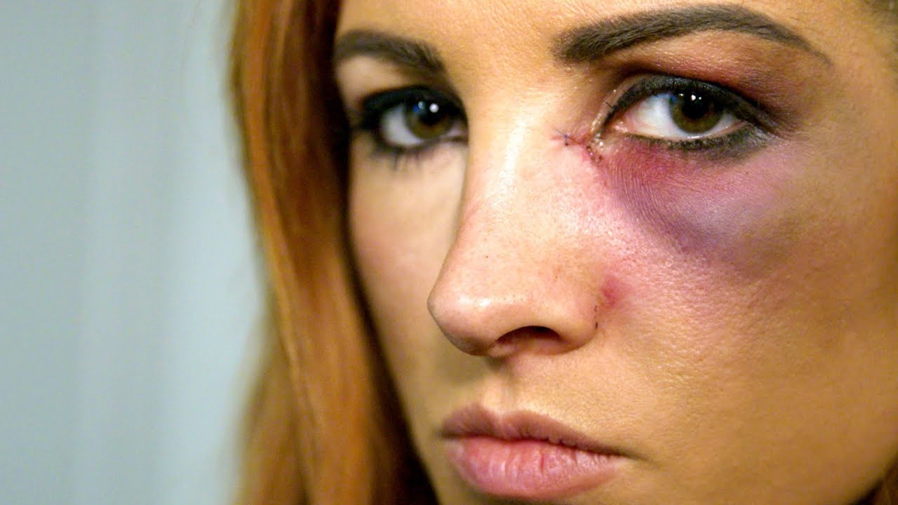 Becky Lynch learns she can't compete at Survivor Series: WWE Day Of
