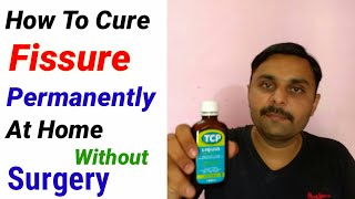 how to cure fissure