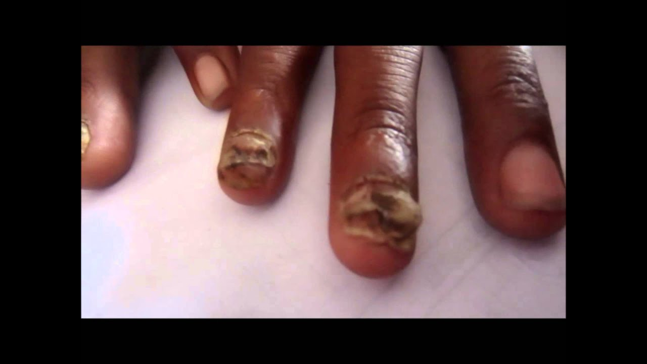 Fungal Infection Of Nails - YouTube