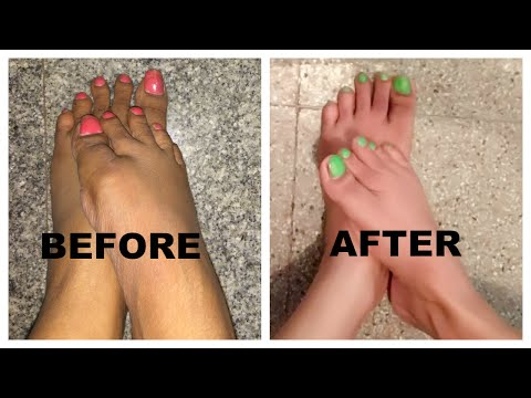 How to do pedicure at home by using Natural products (without any tools)