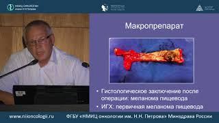 Редкие злокачественные опухоли пищевода (диагностика и лечение)