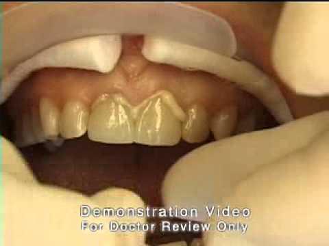 Базальная имплантация, зубной имплант, зубной имплант цена