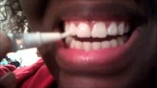 Dazzling White Teeth Whitening Gel Pen Review Day: 3