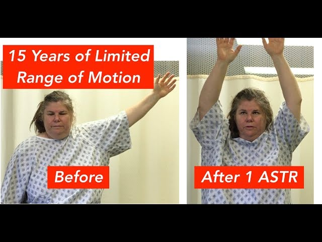 Shoulder Restriction Improved to Normal in Minutes! (INCREDIBLY EFFECTIVE!!)