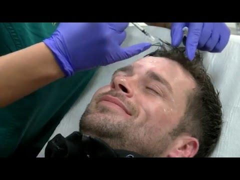 BOTOX® Wrinkle Treatment on Male Face