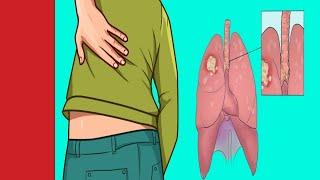 Voici Les 8 signes d'alerte précoces du cancer du poumon que toute femme doivent savoir
