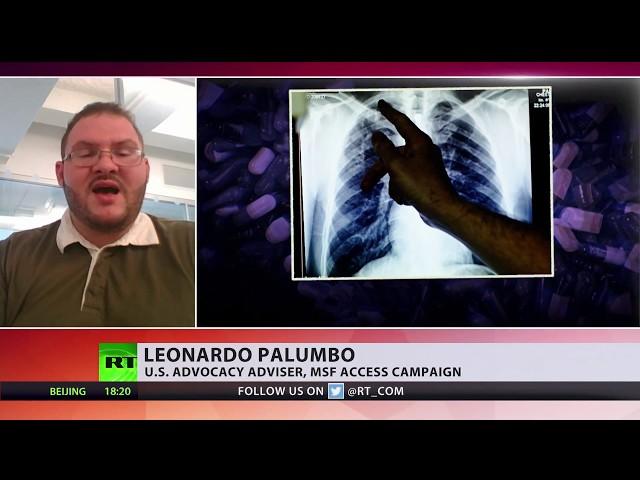 US amends UN tuberculosis paper, removing 'anti-pharma' paragraph