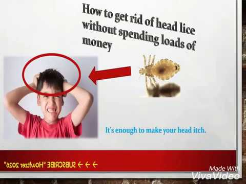 head lice without spending loads of money