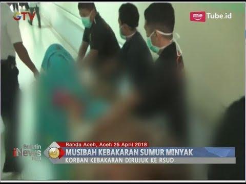 5 Korban Ledakan Sumur Minyak di Aceh Dirujuk ke RSUD Zainoel Abidin - BIP 26/04
