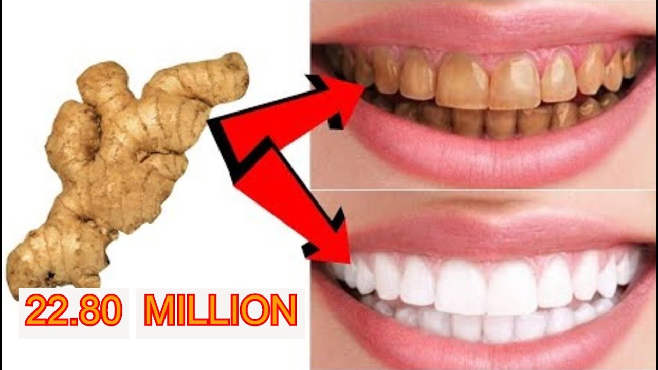 Magical Teeth Whitening Remedy Natural Home Remedy Youtube