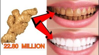 MAGICAL TEETH WHITENING REMEDY || NATURAL HOME REMEDY