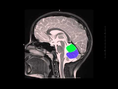 Midline Brain Anatomy On Mri Youtube