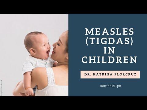 MEASLES (TIGDAS) IN CHILDREN: Paano Maiiwasan? Safe Ba Ang Measles Vaccine? By Doc Katrina Florcruz