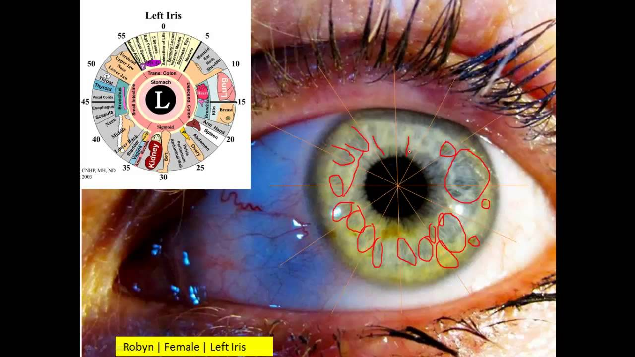 An iridology analysis with a lot of lymph stuck in the body youtube an iridology analysis with a lot of lymph stuck in the body geenschuldenfo Gallery