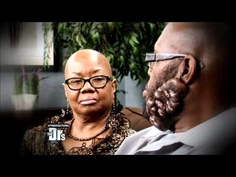 Man with Keloid Scars on his Face Searches...