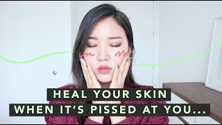🤢Sensitive Skincare Routine • How To Calm Down Irritated Skin
