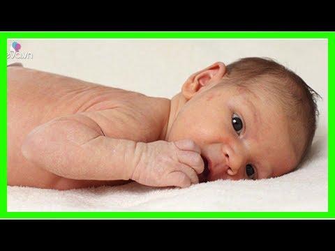 Cách trị rôm sảy cho trẻ sơ sinh tại nhà giúp bé dễ chịu, không quấy khóc - Quỳnh Kool