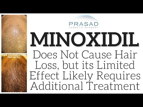 why-minoxidil-doesn't-cause-hair-loss,-but-additional-treatment-is-needed-for-aggressive-hair-loss