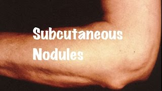 Brief information on Subcutaneous Nodules