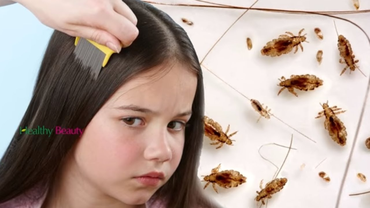 How To Get Rid Of Head Lice Fast And Easy Health And Beauty Youtube