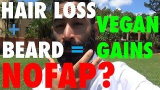 Beard Growth & Treating Hair Loss?