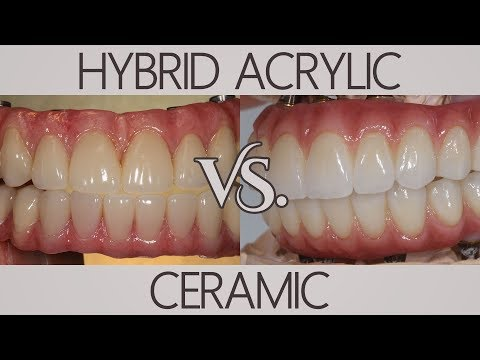 What's the difference between acrylic and ceramic? | Patients Ask