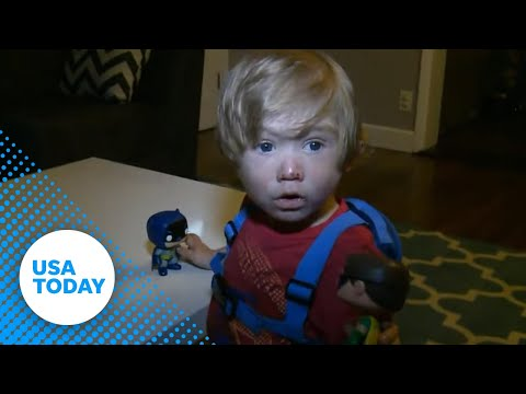Toddler suffers from rare, vampire-like symptoms