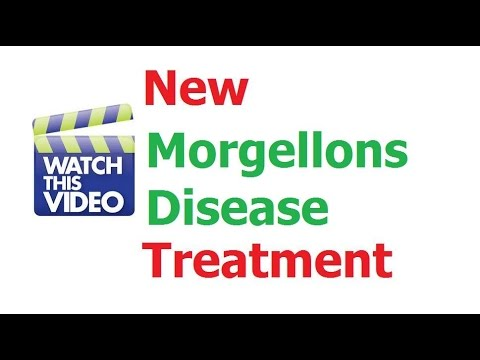 Morgellons Relief? Get Morgellons Disease Relief Skin & Hair Treatment