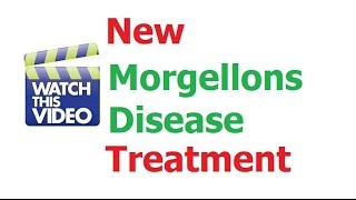 Morgellons Disease Home Treatment Cure Discovered