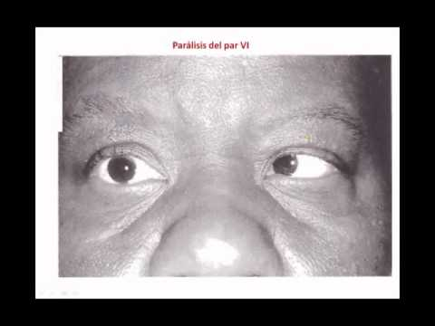 Anatomia del Ojo, FM 1103