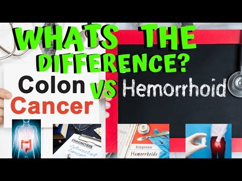 What Are The Differences Between Colon Cancer And Hemorrhoid Symptoms And Signs Youtube