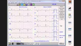CardioResting ECG Demo   YouTube