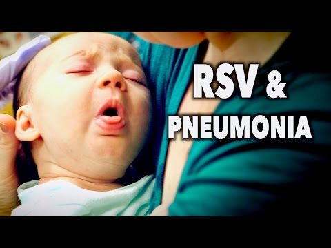 RSV & PNEUMONIA! (2 Month Old Baby) | Dr. Paul