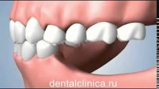 Стоматология лечение зубов имплантация в Москве Санкт Петербурге протезирование европейское качество(, 2015-05-01T05:48:49.000Z)