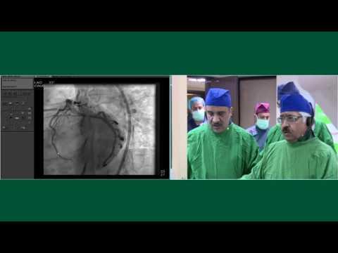 India Live 2017   Dr  Ashok Seth & Dr  Vijay Kumar, Fortis Escorts, New Delhi