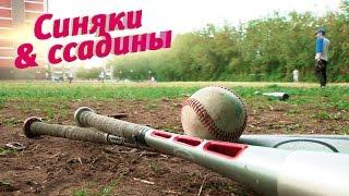 Синяки и ссадины. Бейсбол