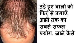 100% guarantee. Hair regrowth naturally by just 1 simple steps बालों को दोबारा उगाने का 1 घरेलू उपाय