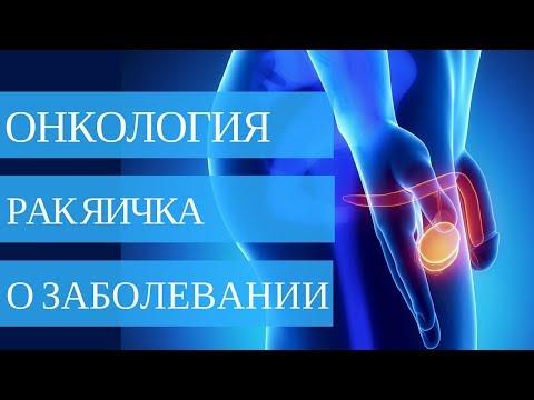 РАК ЯИЧКА - причины ➤ диагностика ➤ лечение 💉💊