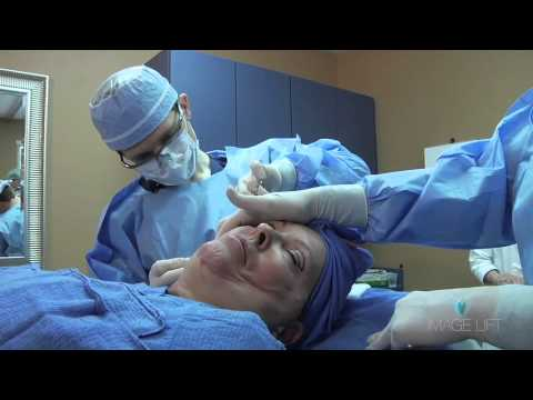 Castellano Facelift Tampa FL - Call 877.346.2435  Cosmetic Surgery in Tampa